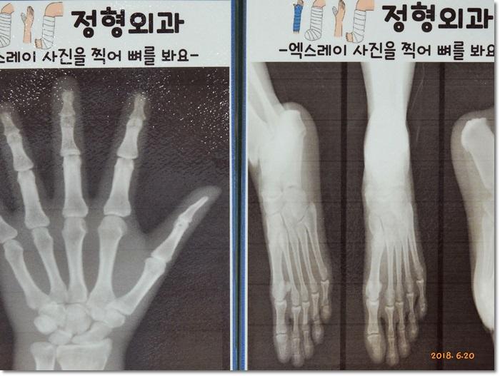 꾸미기_DSCN2165.JPG